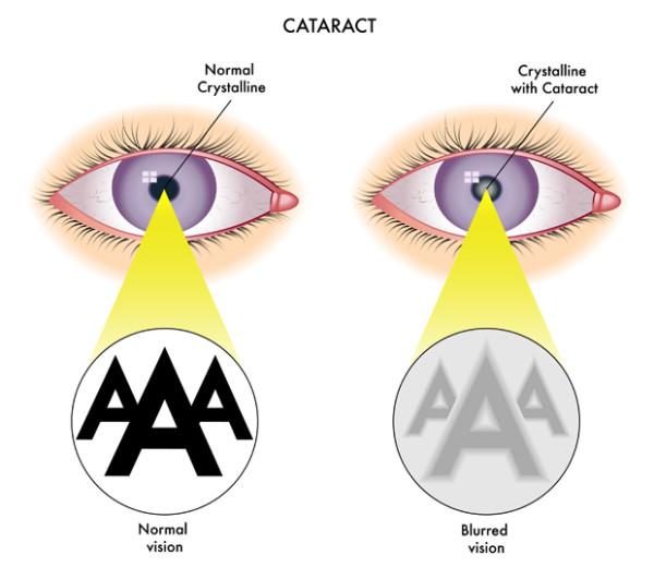cataract symptoms