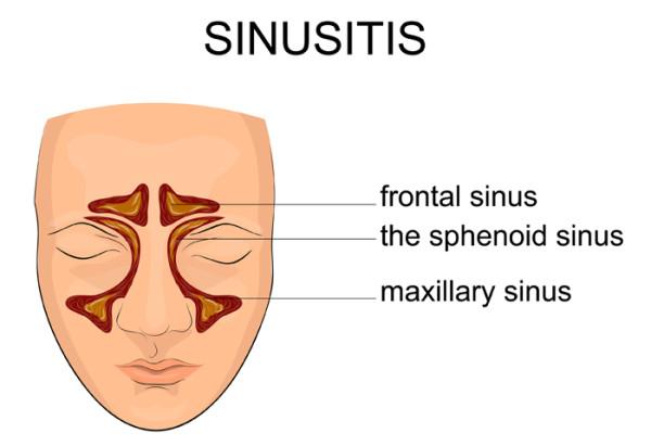 sinusitis symptoms