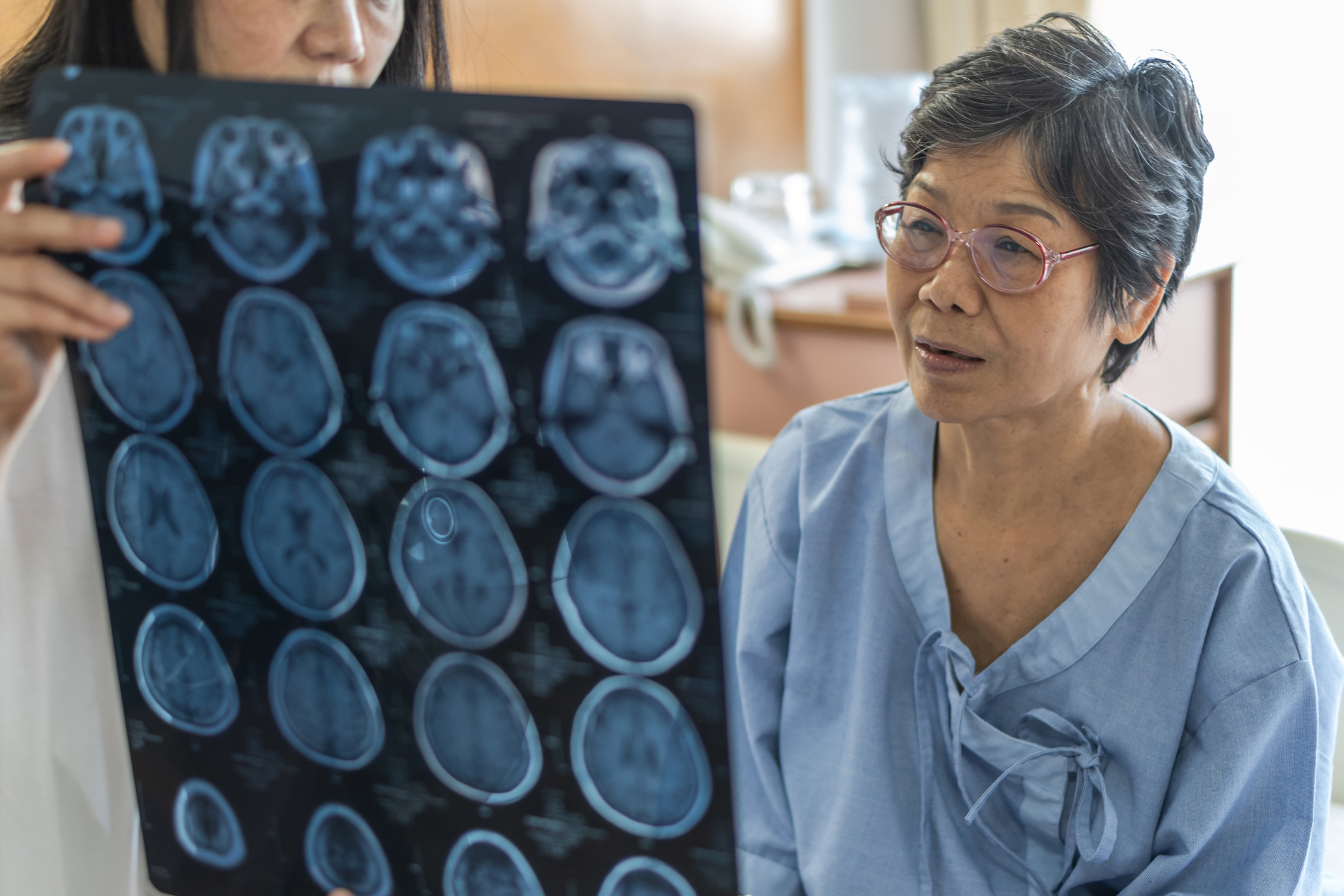 Woman reviewing brain imaging with her doctor
