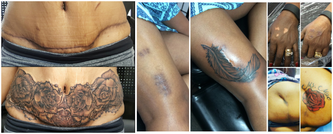 Permanent Makeup and Scar Cover Up
