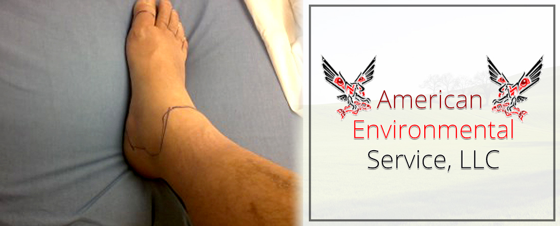 Injury Prevention Training