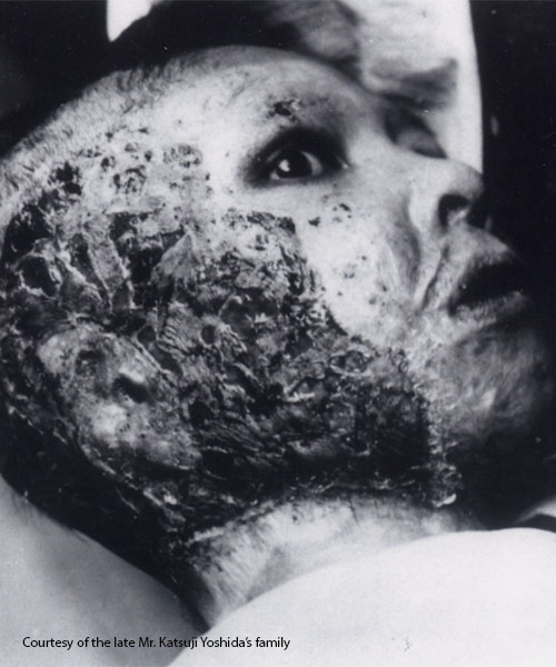 Burned victim of the atomic bomb. Photo courtesy of the late Mr. Katsuji Yoshida's family.