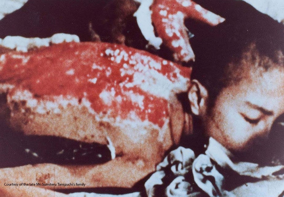 Burned victim of the atomic bomb. Photo courtesy of the late Mr. Sumiteru Taniguchi's family.