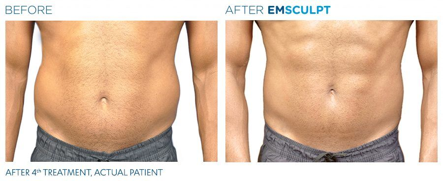 What Is Emsculpt, And Does It Really Work? · Betches