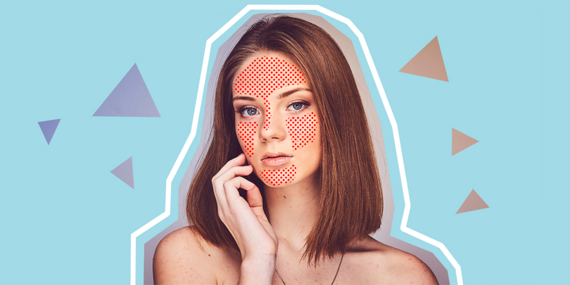5 Things You Need To Know About Microneedling