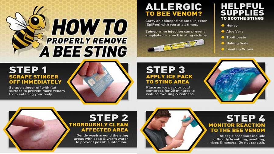 How to Bee Sting
