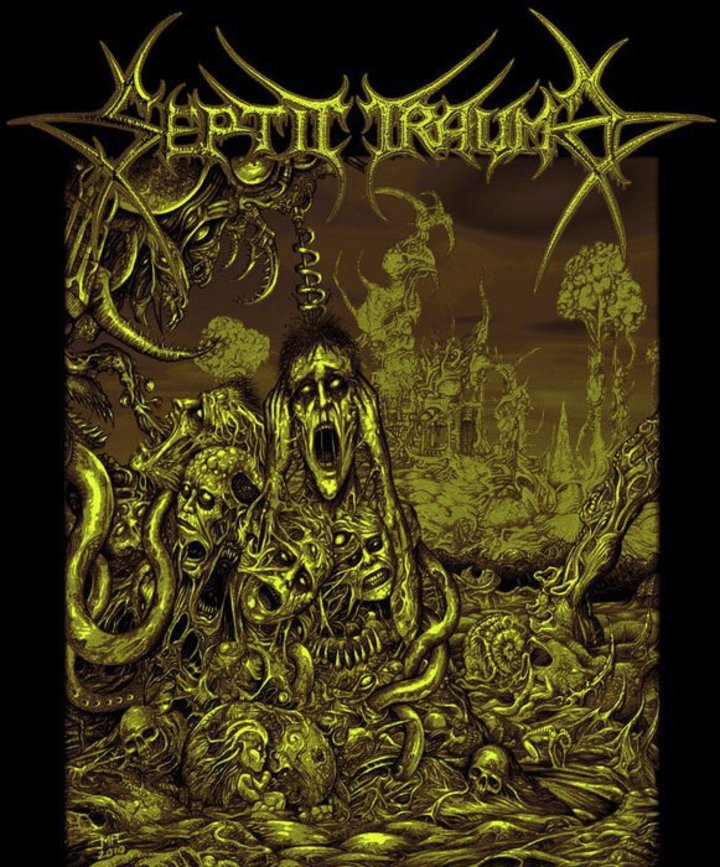 Septic Trauma Tour Dates