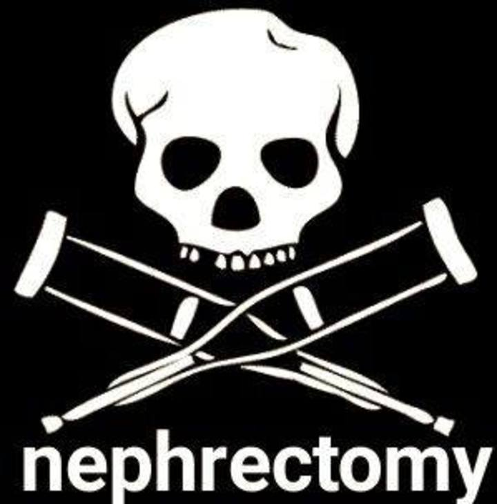Nephrectomy Tour Dates