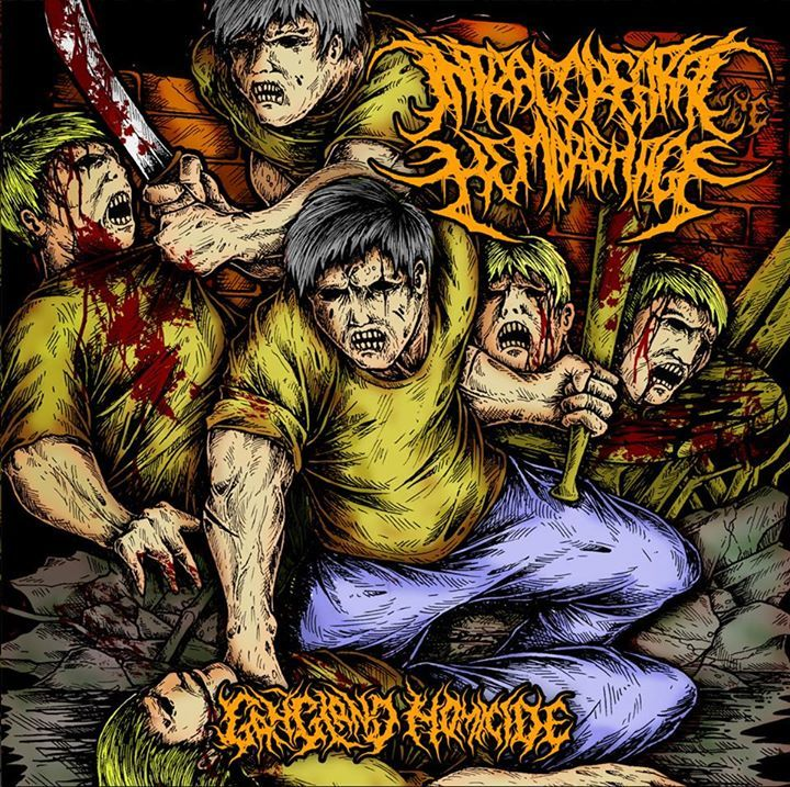 Intracerebral Hemorrhage Tour Dates