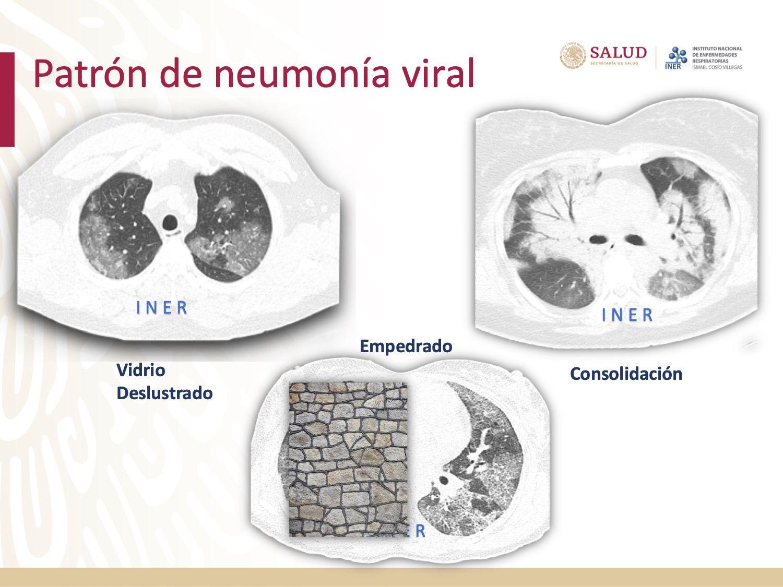 COVID-19 Diagnóstico por imagen y espectro radiológico