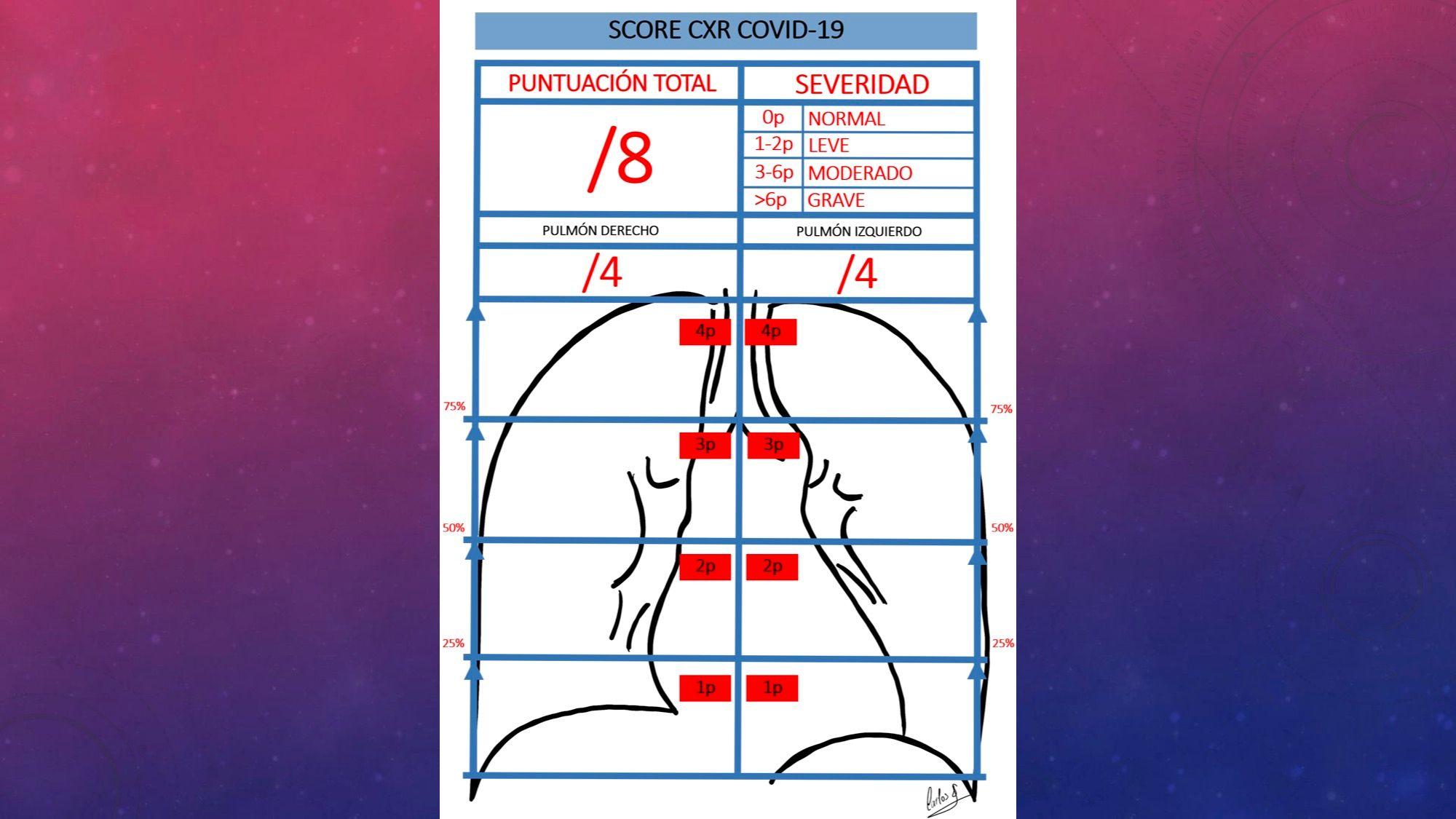 Estratificación severidad radiológica COVID-19 mediante RX