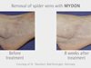 MYDON by Quantel Derma - Perfect for Spider Veins