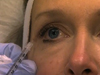 The Ins and Outs of Botox®