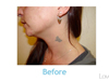 Laser Tattoo Removal and the Use of Stacked Treatments