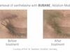 BURANE, Er:YAG Laser System by Quantel Derma