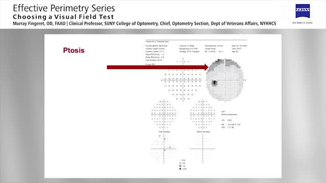 Session V - Choosing a Visual Field Test - Part 2