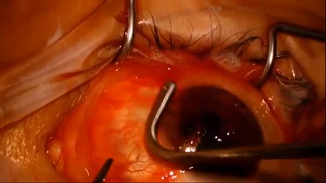 Recurrent Pterygium Managed with AmnioGraft and Tisseel Glue