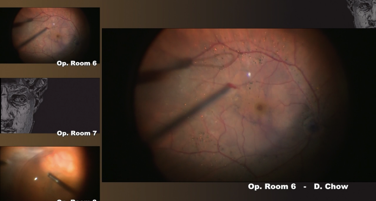 2017] Complicated Retinal Detachment Surgery in an Eye With Cloudy