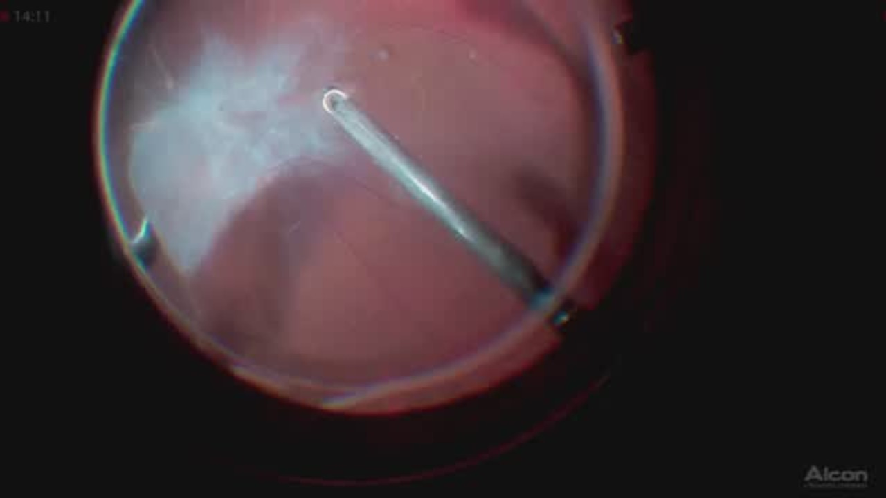 3d Channel Eyetube Silver Wiring Retina Thin Mobile Complicates An Adherent Tractional Retinal Detachment Floretina Live Surgery