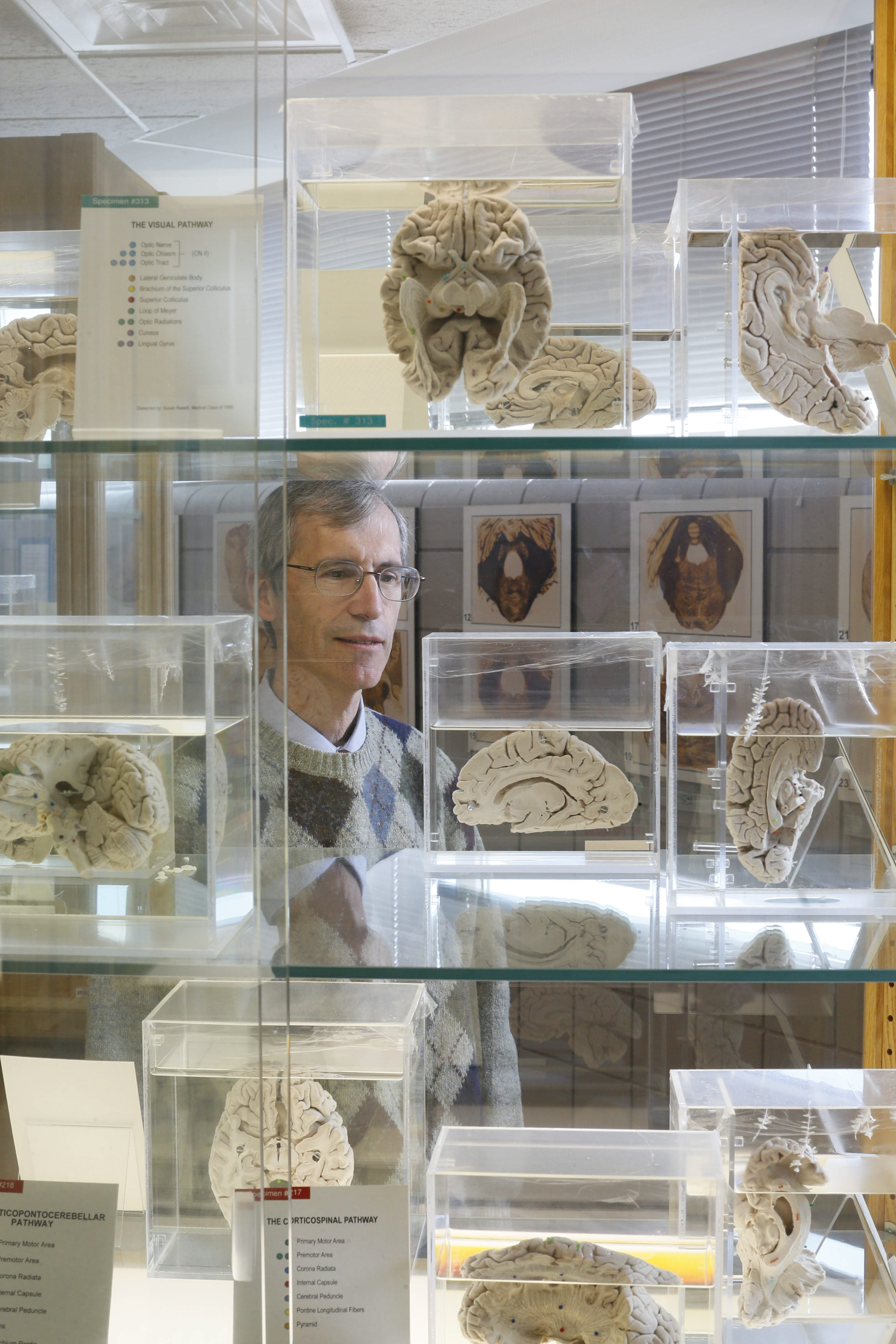 "Dr. Chris Cohan, curator of the Museum of Neuroanatomy at UB Medical School with its valuable display of human brains, said ""You get mystified really at how complex the brain is."""