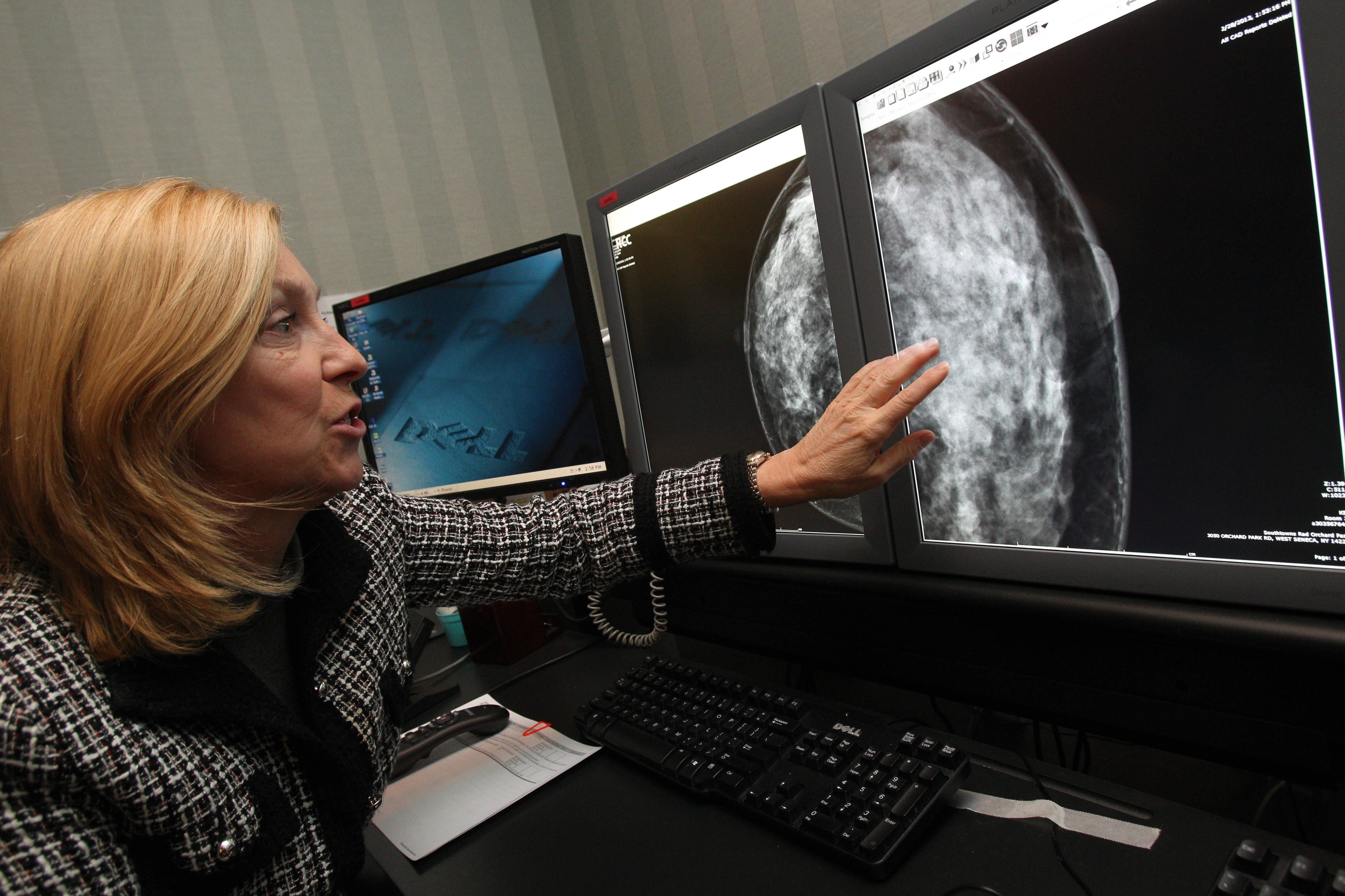 Dr. Claudia Fosket, imaging specialist at Southtowns Radiology, looks at a mammogram of a dense breast.