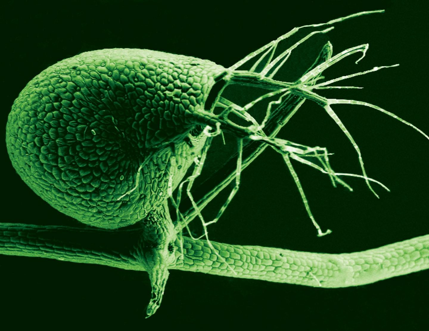 """A look at the bladder of the bladderwort plant, color added. Carnivorous bladderwort, an aquatic plant, lacks the """"junk"""" DNA that most organisms have in abundance."""