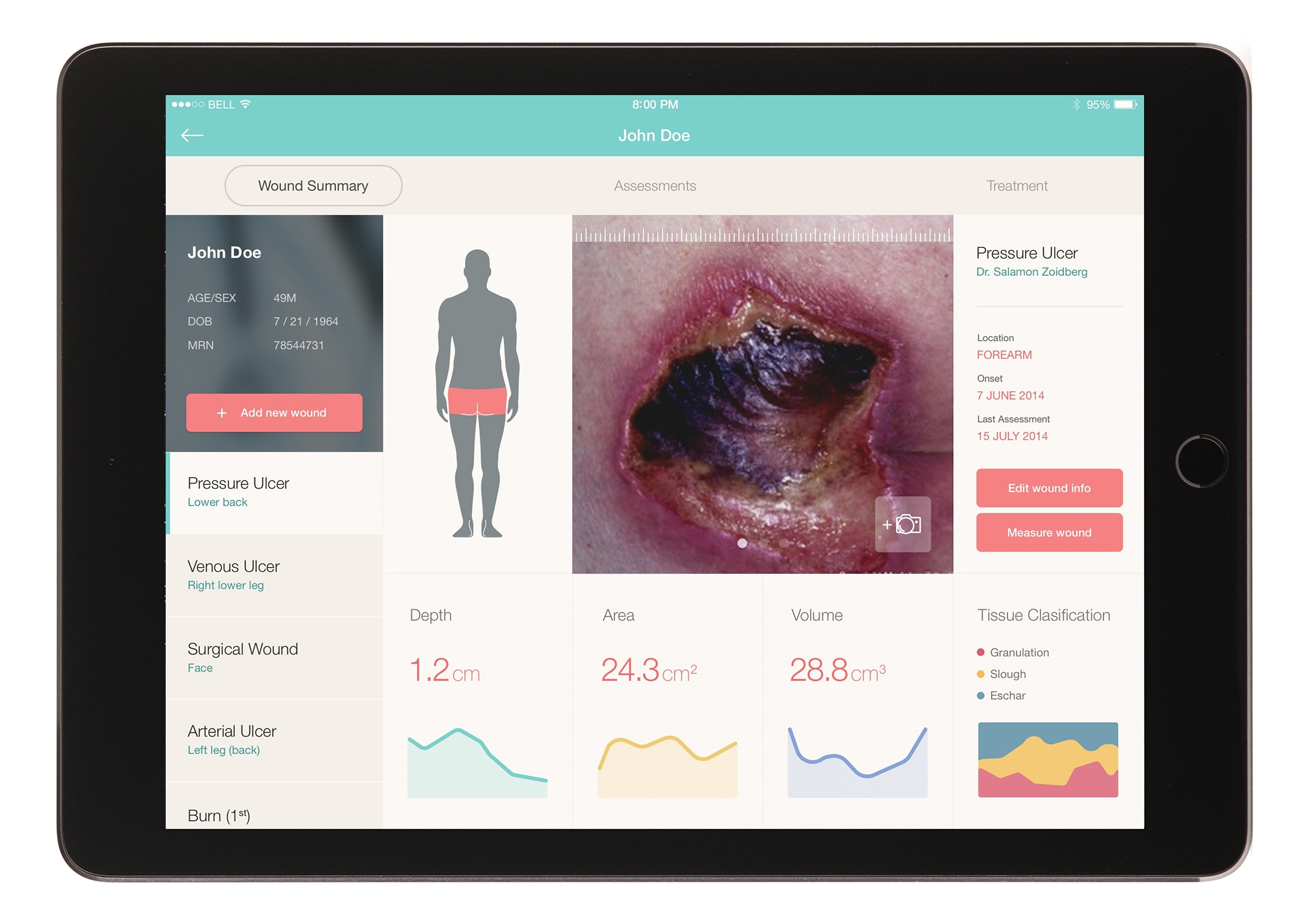 A new app allows data and images about a wound to be displayed on an iPad.