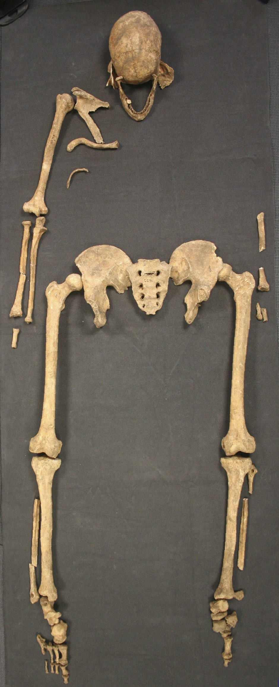 This skeleton indicates leprosy spread to Britain from Scandinavia in the fifth or sixth century.