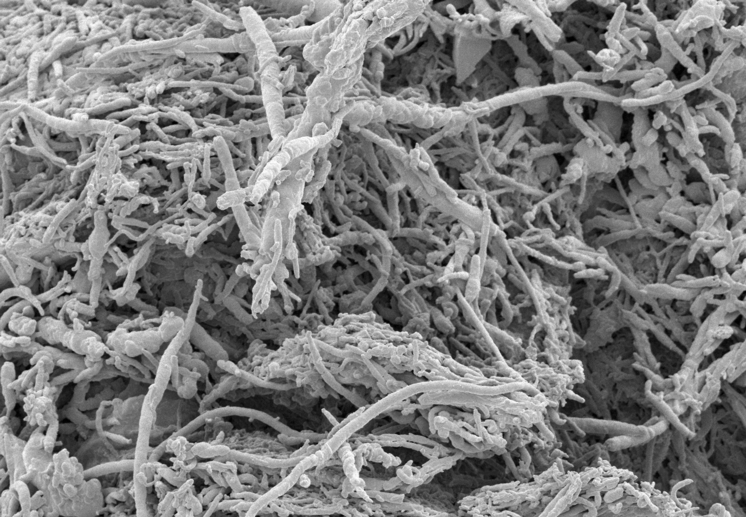 House dust under high magnification reveals fungi and bacteria.