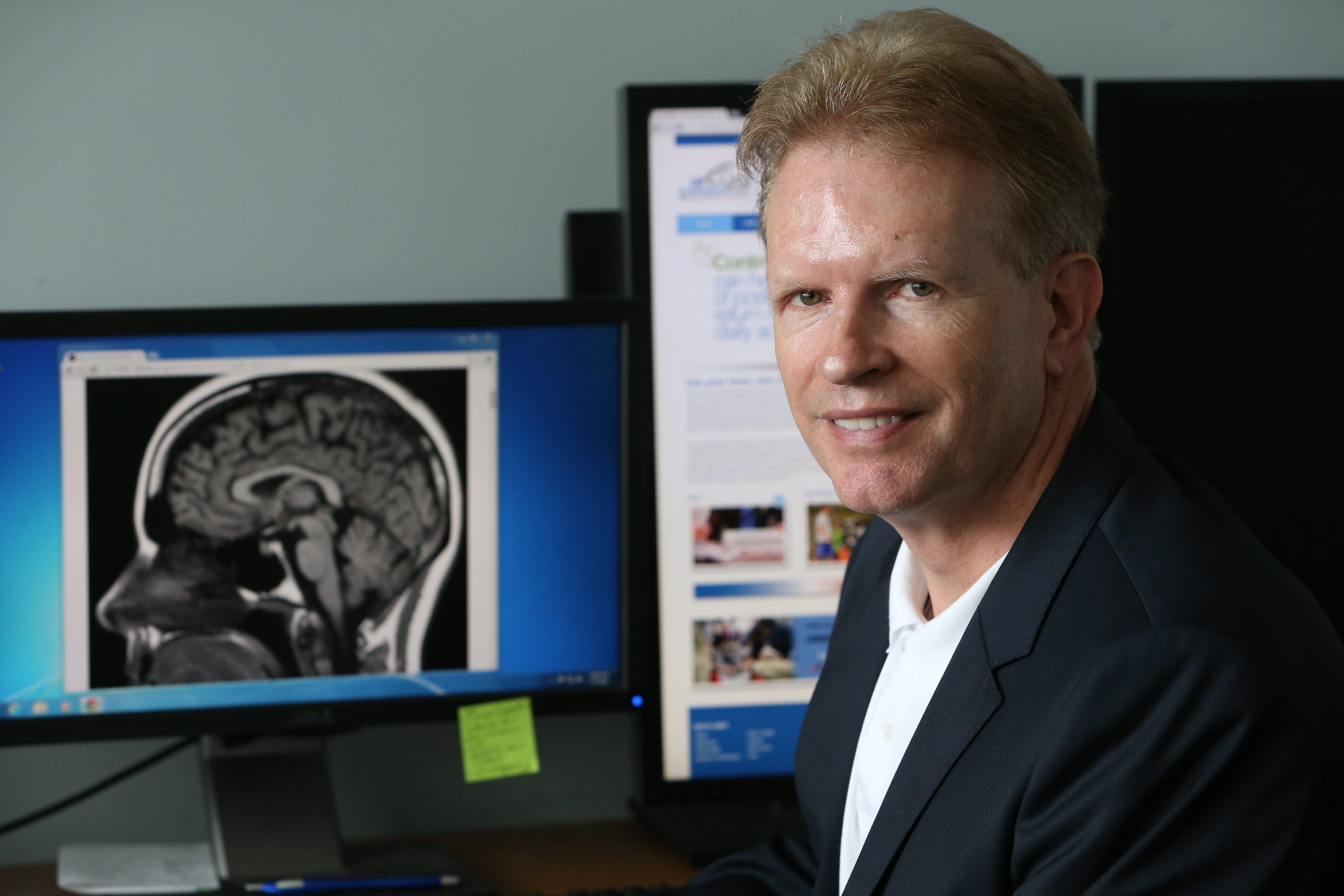 "UB's Dr. John Leddy will appear in a segment on concussions in young athletes Thursday on ""CBS This Morning."" (Sharon Cantillon/Buffalo News)"