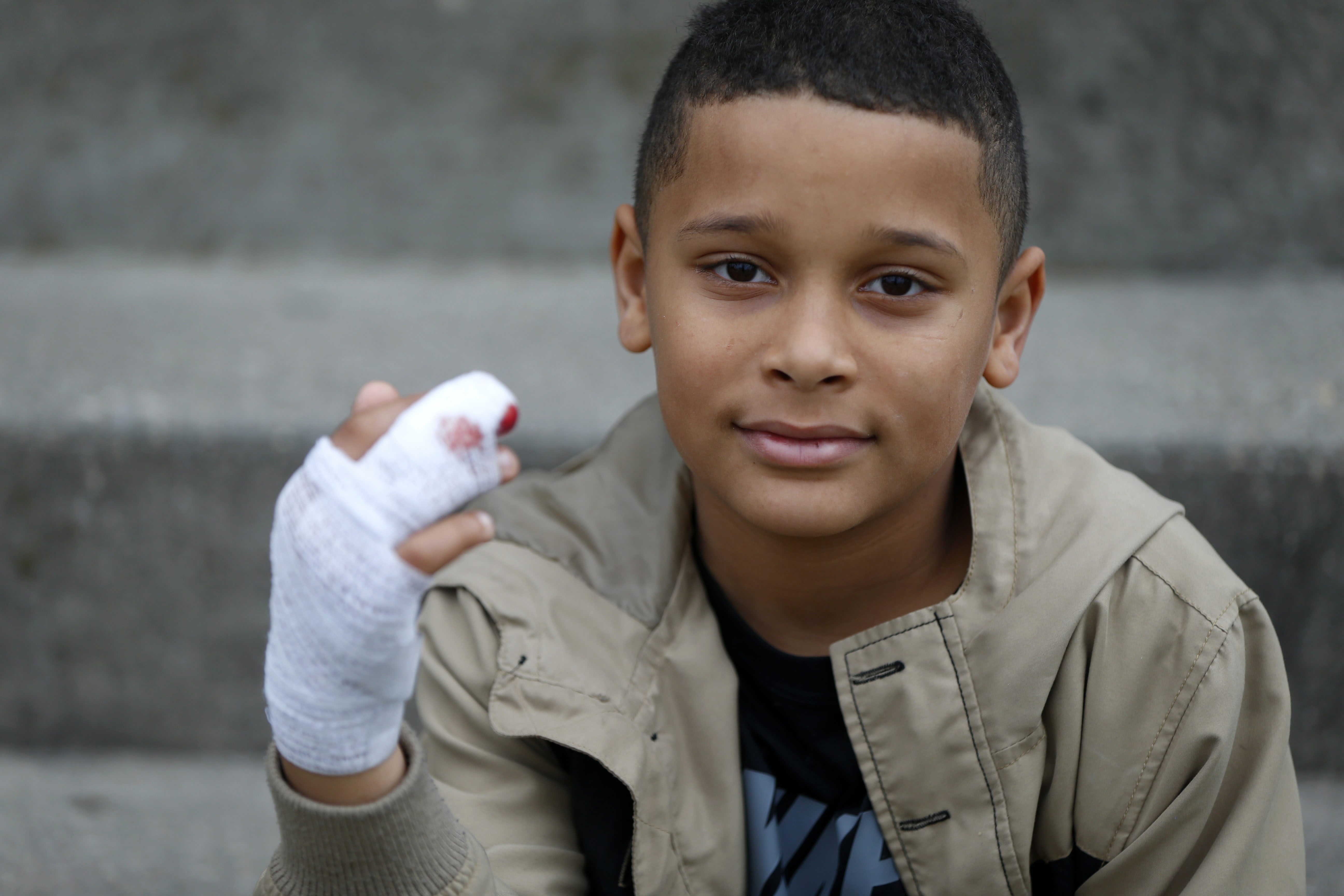 Meech Mills was treated at Women & Children's Hospital after a dog severed his  finger at the knuckle. Doctors couldn't reattach it.