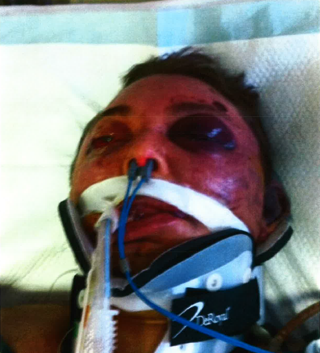 Richard Metcalf in a hospital bed shortly before he was declared dead. (File photo)