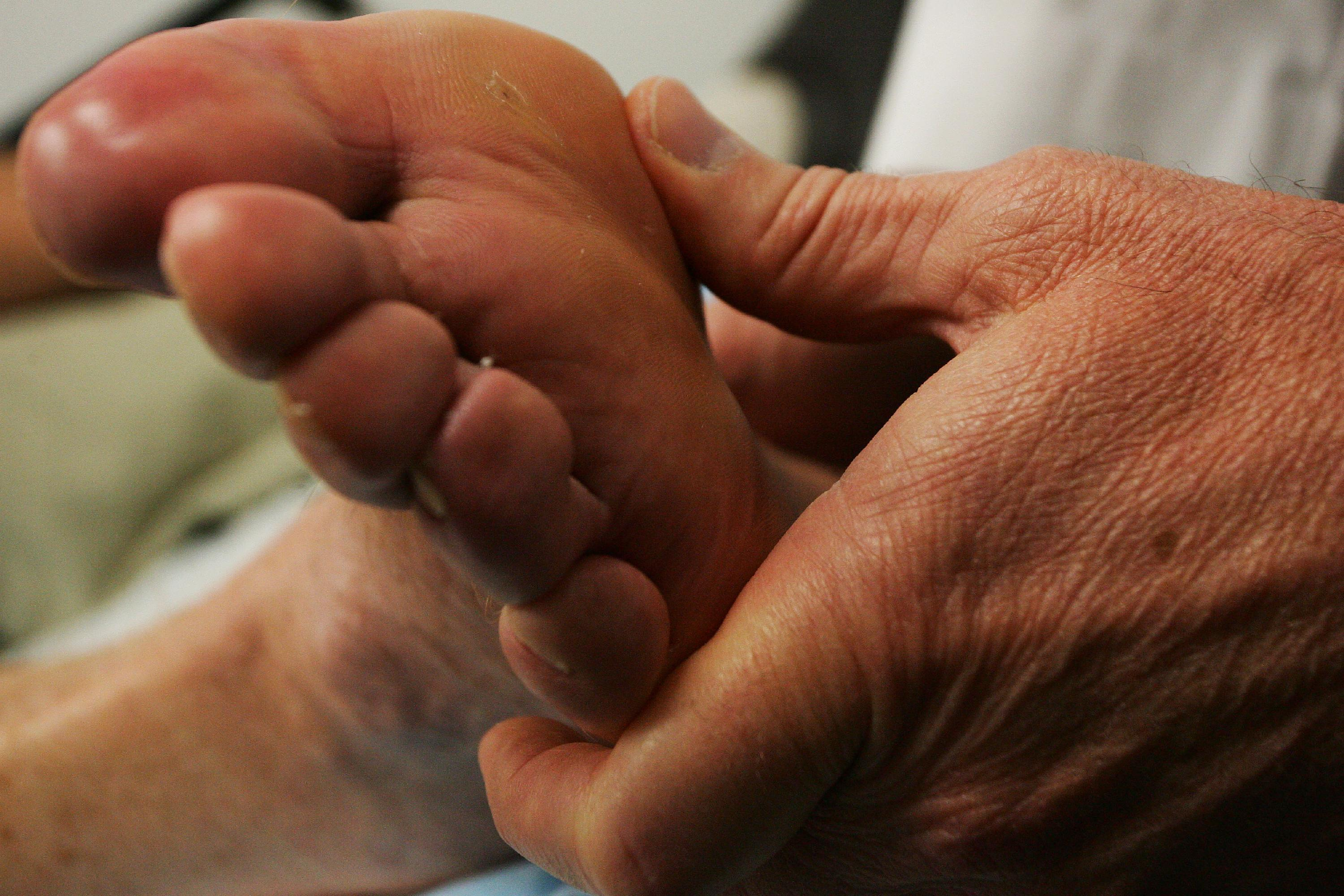 One in four upstate New Yorkers with Type 2 diabetes do not get recommended foot exams. (Buffalo News file photo)
