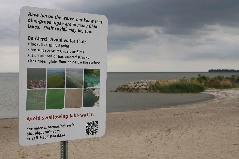 A sign at the beach in Maumee Bay State Park in Oregon, Ohio (near Toledo) warns beachgoers about the hazards of blue-green algae in Lake Erie's water. (Derek Gee/Buffalo News)