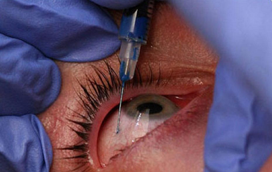 Injections can be used to treat a variety of eye conditions.