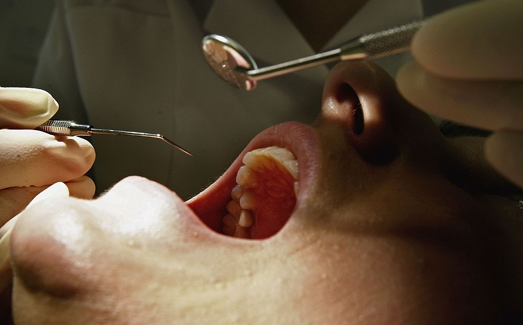 Dentists sharply oppose a proposed law that would require them to disclose where a patient's crowns, dentures are veneers are made. (Photo by Getty Images)