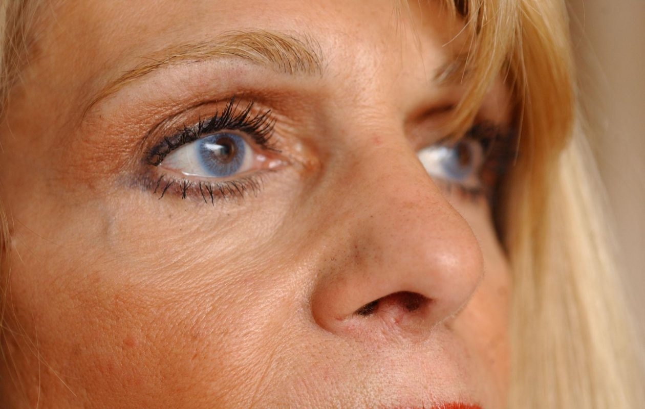 Talk to an eye professional before sharing eye drops with others. (Sharon Cantillon/News file photo)