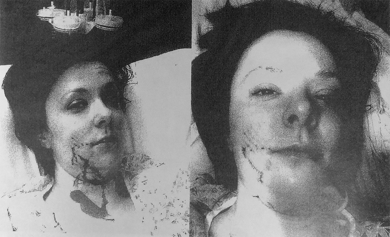 Jennifer Czapla after being attacked by her aunt's dog, Buddy, last year. (Erie County Clerk's Office records)