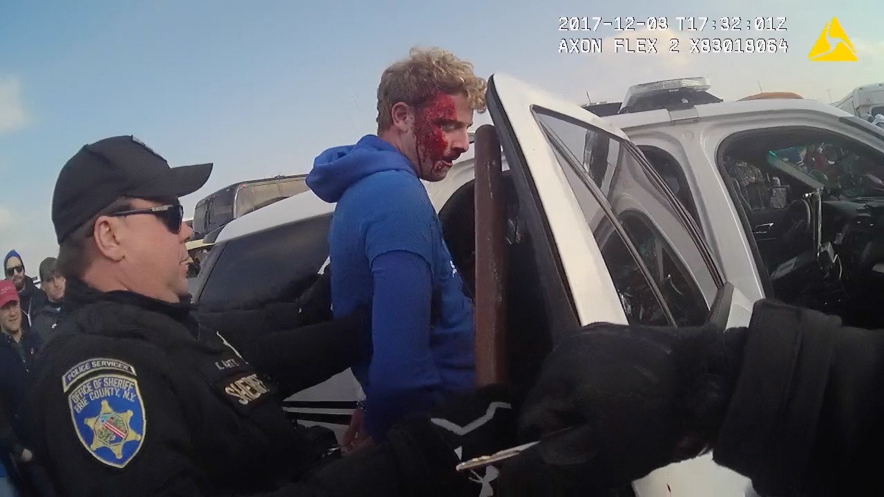 Body-camera video turns against deputies after bloody arrest at Bills