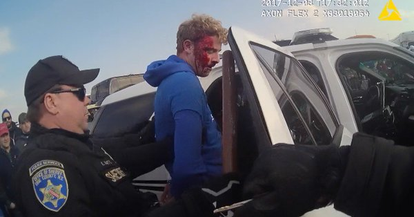 """Arrested after swearing at an Erie County Sheriff's deputy, Nicholas H. Belsito was left with a broken nose and a bloody face, as seen in this image from a body camera video. The deputy who hit him with a baton and took him to the ground, Kenneth P. Achtyl, later dubbed the defendant """"Mr. Bloody Face."""""""