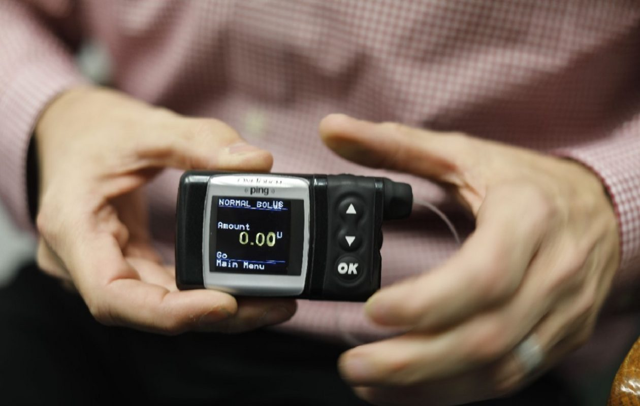 Jim Vail of Orchard Park holds his insulin pump. He has been able to keep his blood sugar levels well balanced with help from Dr. Paresh Dandona and other health care providers at the Western New York Center of Diabetes-Endocrinology in Amherst. (Derek Gee/Buffalo News)
