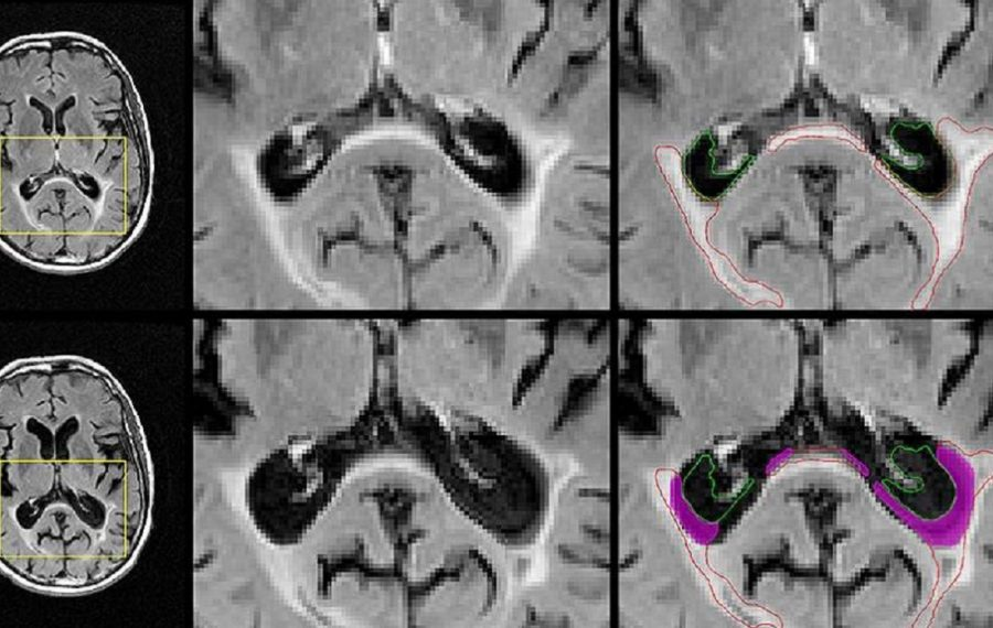 These images show brain lesion volume in a patient treated at the Buffalo Neuroimaging Analysis Center, University at Buffalo Department of Neurology, whose disease progressed to secondary-progressive multiple sclerosis. The yellow boxes indicate the region magnified at left. The top row shows baseline images; the bottom, follow-up images. Magenta indicates areas that were lesioned at baseline that have dissolved into cerebrospinal fluid at follow-up. (Photo courtesy UB Jacobs School of Medicine and Biomedical Sciences)