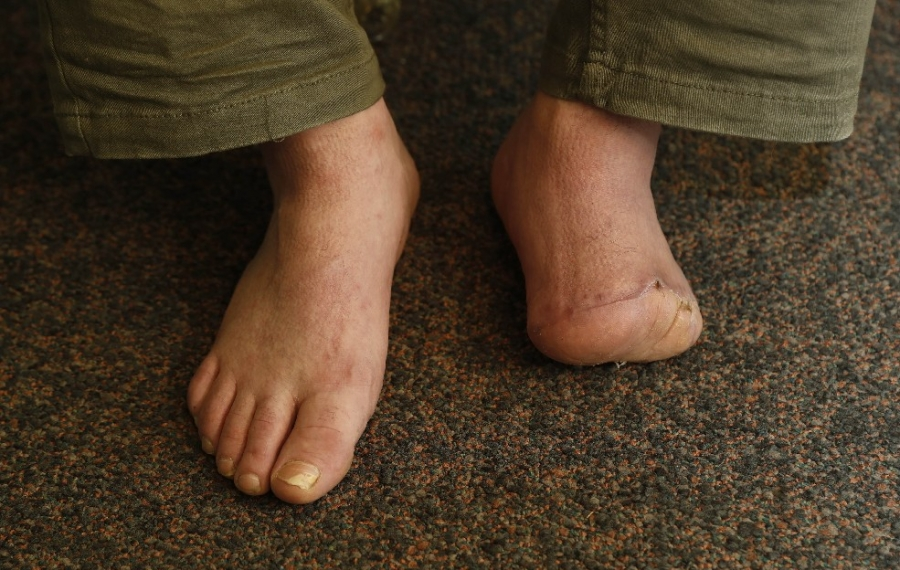 How an Erie County inmate lost his foot in a jail 'head and shoulders' above the rest