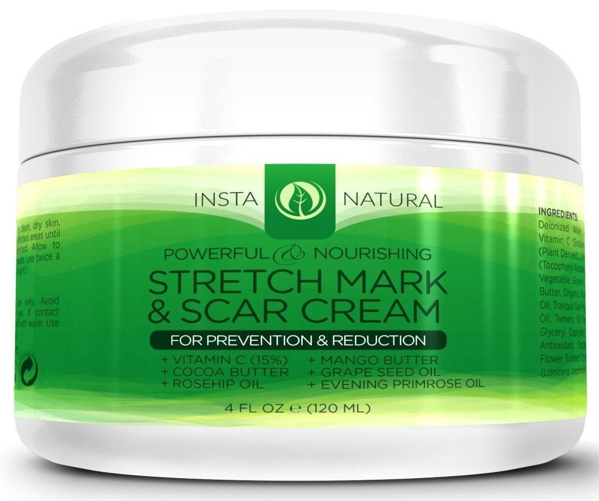 how to get rid of stretch marks overnight
