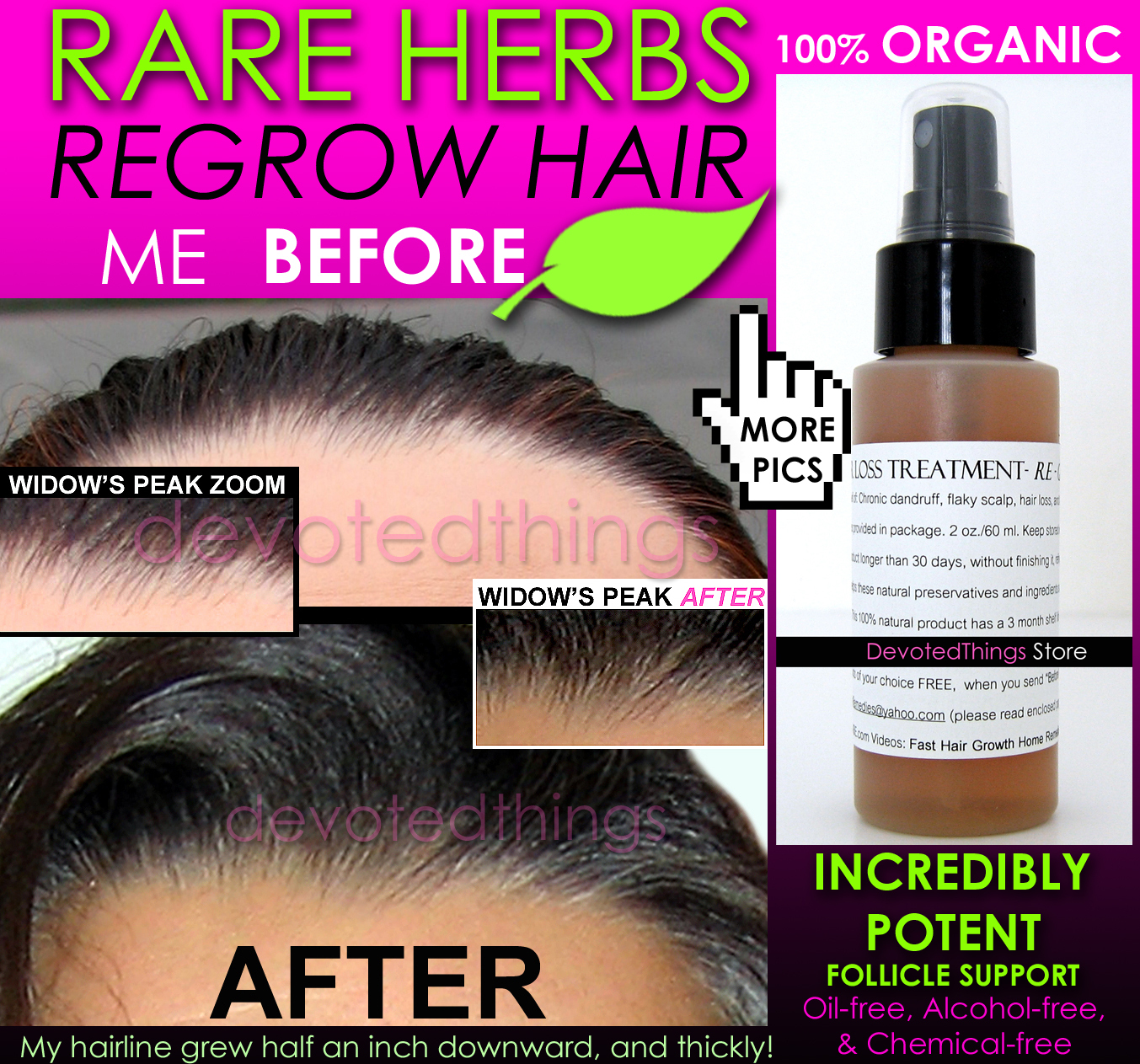 Fast Hair Growth Products For Natural Hair