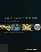 Pain-Relieving Procedures
