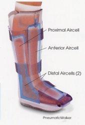 The Aircast XP Pneumatic Walking Boot