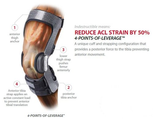 DonJoy ACL Everyday Knee Brace