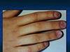 Q image thumb