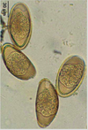 eva d les paraziti viermi roșii la un copil